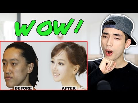 Korean Plastic Surgery Before and After Photos Reaction